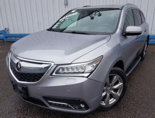 Used 2016 Acura MDX Elite Pkg AWD *NAVIGATION-DVD PLAYER* for sale in Kitchener, ON