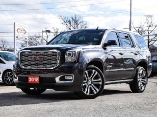 Used 2018 GMC Yukon Denali |NAVIGATION |LEATHER |4WD for sale in Stoney Creek, ON