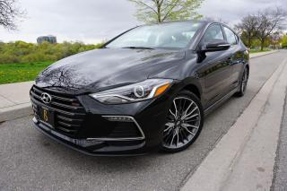 Used 2018 Hyundai Elantra 6SPD MANUAL / 1 OWNER / NO ACCIDENTS / RARE SPORT for sale in Etobicoke, ON