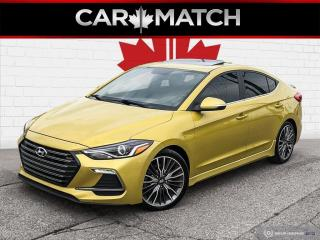 Used 2018 Hyundai Elantra SPORT / LEATHER / ROOF / NO ACCIDENTS for sale in Cambridge, ON