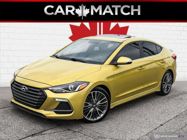 2018 Hyundai Elantra SPORT / LEATHER / ROOF / NO ACCIDENTS